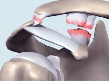 La pathologie de l'articulation acromio claviculaire