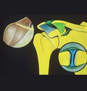 fracture-epaule