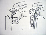 fractures-extremite-superieure-humerus