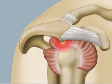 Le conflit sous acromial de l'épaule