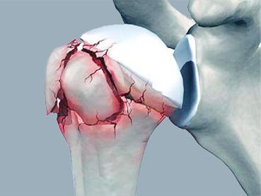 Les fractures de l'épaule