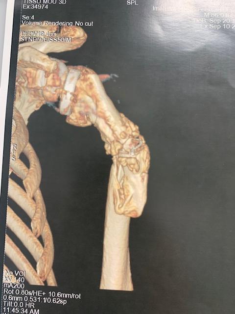 Fracture-epaule-sous-prothese-apres-chute